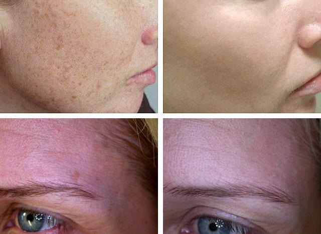 Пигментация кожи на лице: лечение пигментных пятен, вылечить причины на щеках, как лечить, как выглядят