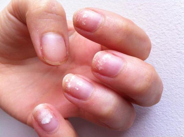 Почему не держится гель-лак на ногтях: причины плохого маникюра, что нельзя делать после нанесения, сколы при беременности, снимается