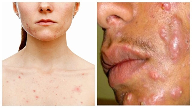 Чистка лица: как делается сухая у косметолога, до и после, виды в салоне, как часто делать химическую, профессиональную ручную, для чего нужна и стоит ли