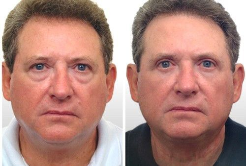 Мешки под глазами: причины и лечение у мужчин, синие и красные у женщин, почему появляются белые отеки, черные утром, темные после сна