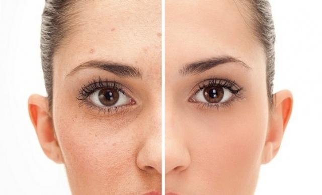 Крем от прыщей на лице для подростков: рейтинг 12 хороших кремов от угревой сыпи на лице