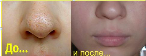 Желатиновая маска для лица: невероятный эффект, отзывы о маске с подтягивающим желатине