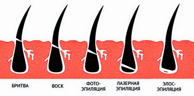 Эпиляция shr - что это такое, отличия от 3 других способов, какой используют аппарат для удаления волос, как происходит процесс эпиляции, какие зоны на теле эпилируют, какой результат и его длительность, противопоказания