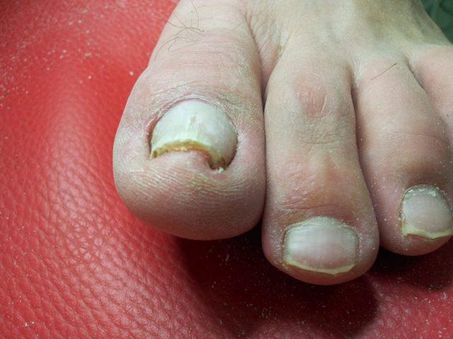 Страшные ногти на ногах: причина и лечение утолщения ногтевой пластины, стал толще и деформировался с возрастом, становятся толстыми