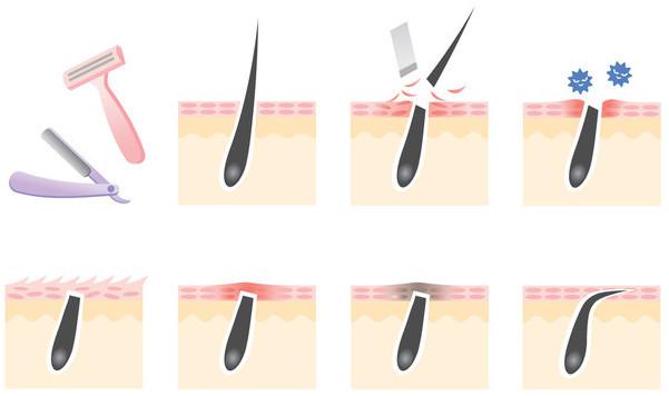 Вросшие волосы: средства против после эпиляции, как избавиться с кремом, лосьон от врастания, Ихтиоловая мазь, спрей Левомеколь