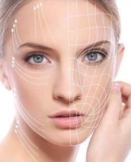 Армирование лица: что это такое, отзывы о биоармировании ресниц гиалуроновой кислотой в косметологии