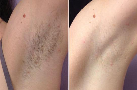 Противопоказания к электроэпиляции: можно ли делать при онкологии, можно ли делать после шугаринга; какие могут быть последствия: проблема вросших волос, волосы растут больше и быстрее, после электроэпиляции опухло место удаления волос, ожоги и волдыри