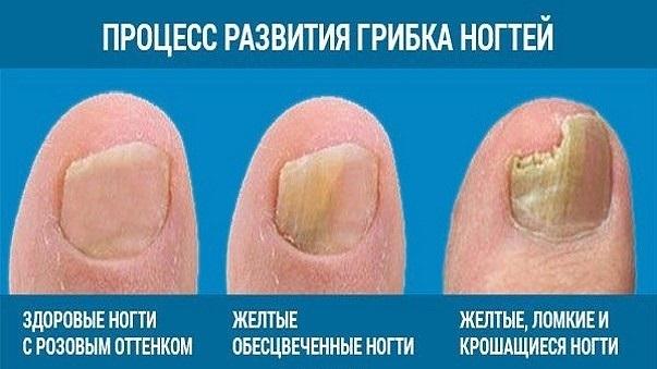 Лоцерил, лак для ногтей с длительным противогрибковым эффектом, цена, отзывы, аналоги.