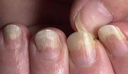 Эвелин 8 в 1: отзывы о лечебном лаке для здоровых ногтей, инструкция по применению восстанавливающего eveline cosmetics, укрепляющее средство