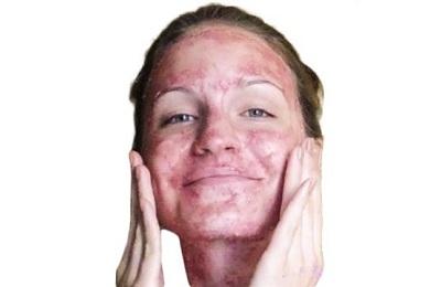 Маска из красной смородины для лица: в домашних условиях и косметологии, отзывы, польза для волос