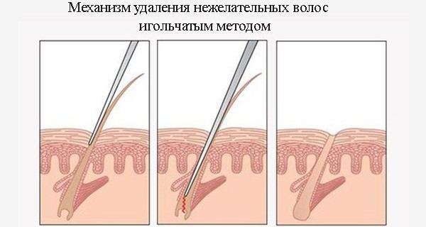 Электроэпиляция - что это такое, сколько стоит сеанс эпиляции электрическим током, от чего зависит эффективность, сколько сеансов нужно для полного удаления волос; подготовка к процедуре - какой длины должны быть волосы; отличие ЭЛОС эпиляции от электро