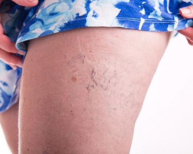 Лазерная эпиляция бедер, голеней и ног полностью - сколько процедур нужно для полного удаления волос, сколько происходит вспышек при удалении волос лазером, на сколько хватает эффекта; со скольки лет можно делать; показана ли процедуру при варикозе вен