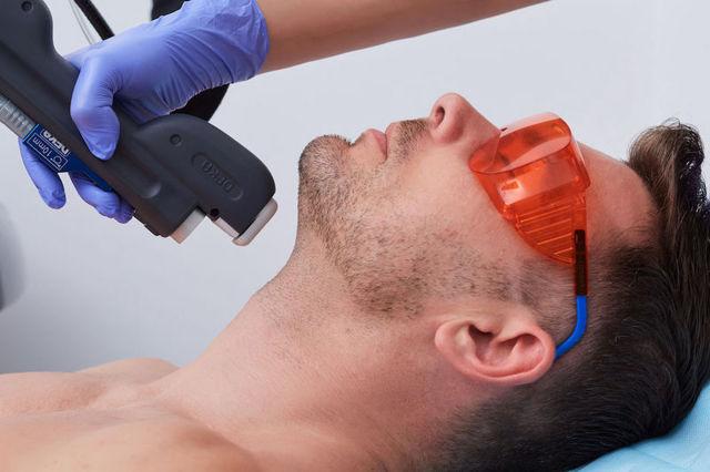 Какие 7 зон эпилируют мужчины лазером: усы на лице, голова у лысых мужчин, спина, пах, ягодицы, уши и грудные волосы; особенности проведения лазерной эпиляции для мужчин; какие есть противопоказания для мужского лазерного удаления волос