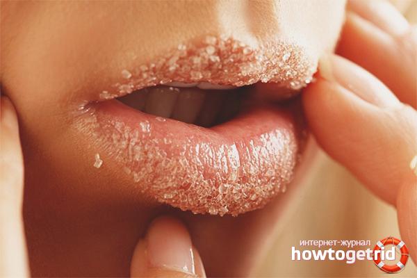 Обветренные губы: что делать, если сильно обветрились и болят, как быстро вылечить, если гигиенической помады нет, лечение