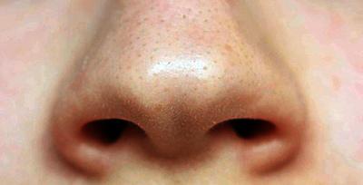 Циновит - отзывы о креме, инструкция по применению противогрибкового геля для душа, умывания лица, мази от прыщей, аналоги лосьона