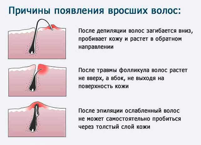 Эпиляция волос на лице у женщин - 6 популярных методов: пинцетом в домашних условиях, депиляция воском усиков над верхней губой, сахарной пастой