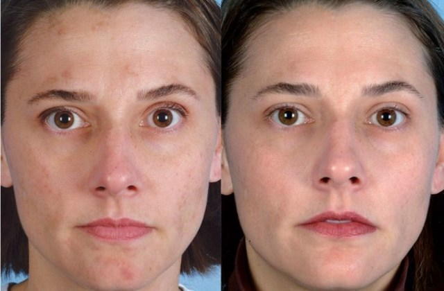 Ультразвуковой пилинг лица: что это такое, отзывы об уз