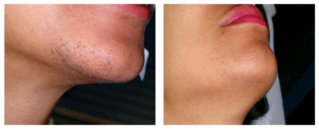 Что такое шугаринг для женщин, какие 5 зон на лице можно депилировать: усики над верхней губой. подбородок, бакенбарды, корректировка формы бровей, избавление от пушка на коже; как происходит процесс удаления волос, подготовка и уход за кожей лица после