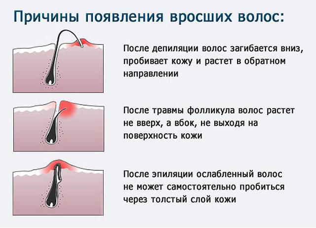 Эпилятор для зоны бикини: отзывы о стайлинге области ног, какой лучше депилятор для интимной, лучшая машинка для депиляции,