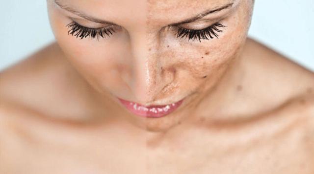 Как убрать пигментные пятна на лице: удалить пигментацию в домашних условиях, быстрое удаление в салоне, выведение