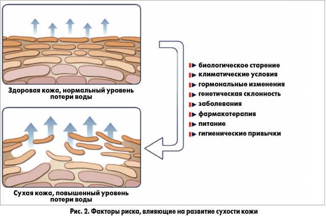 7 кремов с мочевиной: что такое гиалуроновая кислота для тела и лица, отзывы, названия увлажняющего 10 и 30 процентного для детей