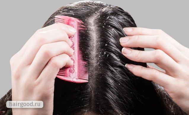 Сульсена - шампунь: инструкция по применению от перхоти, состав пасты от выпадения волос, что это такое, дисульфид селена