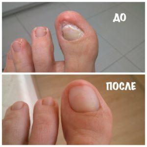 Удаление вросшего ногтя: отзывы о лазерной коррекции, как удаляют лазером, больно ли лечение операцией на ноге