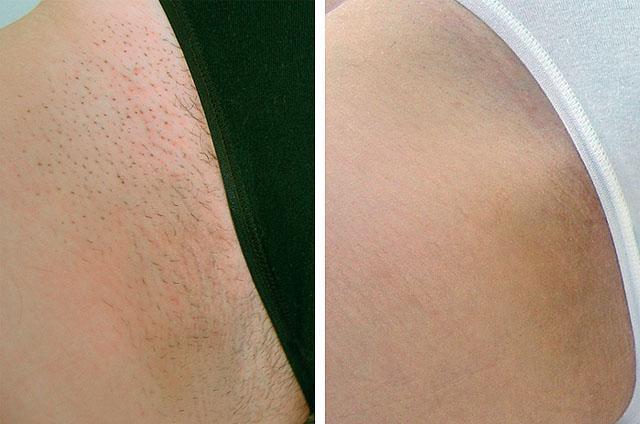 Неодимовый лазер: эпиляция в косметологии для удаления волос, что это такое