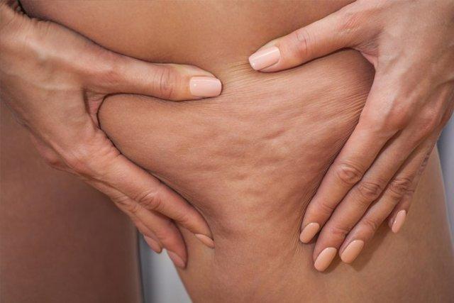 Массаж для похудения живота и боков: польза антицеллюлитного медового, отзывы о щипковом точечном массажере