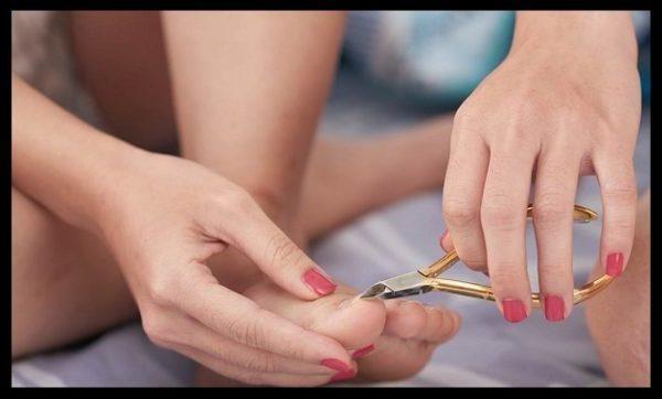 Выравнивание ногтевой пластины на ногах: как выглядит и выровнять, как подрезать вросший ноготь