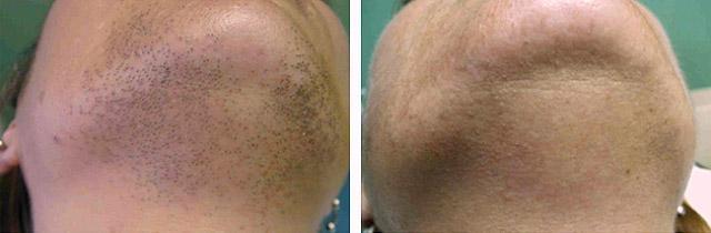 Лазерная эпиляция aft - что это такое, в чем ее преимущества; есть ли противопоказания к проведению процедуры удаления нежелательных волос в разных зонах; что эффективнее - лазерная эпиляция или АФТ; как правильно подготовиться к сеансу