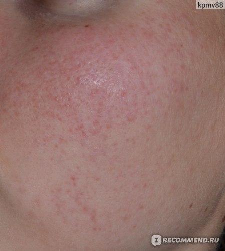 Азелаиновая кислота - действие на кожу лица в косметике: отзывы на крем Азелик при розацеа, от прыщей, пилинг у косметолога при беременности