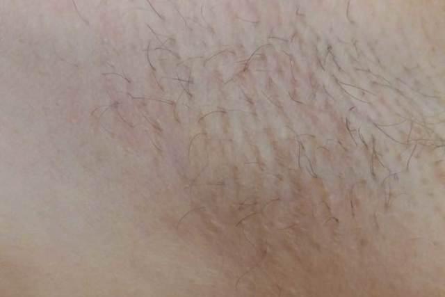 Длина волос перед процедурой шугаринга и какие еще необходимо соблюдать рекомендации перед сеансом, как подготовиться; сколько по времени занимает процедура; какие есть противопоказания: варикоз, менструация, беременность; с какого возраста можно делать