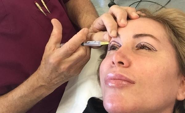 Безоперационная блефаропластика век: отзывы о плазменной и инъекционной, dermaheal eyebag solution