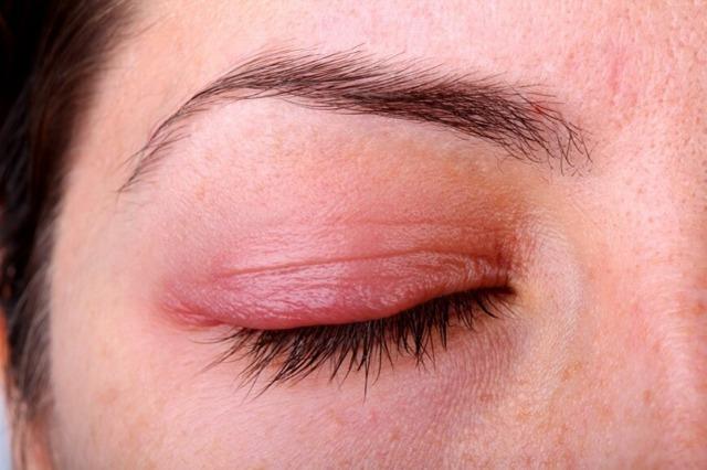 Аллергия на крем для лица: симптомы, как проявляется на косметику, что делать