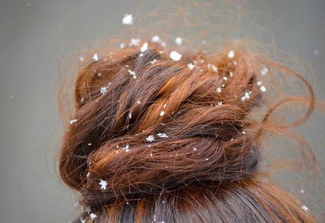 Салициловая кислота от перхоти: что добавить в шампунь, чем помыть голову, как избавиться средством быстро и эффективно, что хорошо помогает