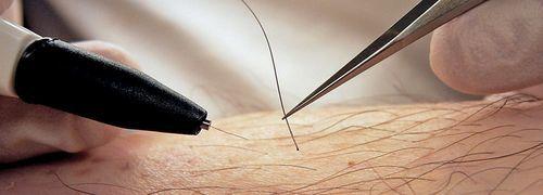 Удаление волос навсегда: виды эпиляции и депиляции, какой самый эффективный способ, как лучше удалить средством, как убрать нежелательные