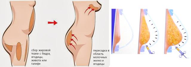 Операция по увеличению грудных желез: как проходит пластика груди, как делают молочных, последствия, сколько длится, как называется
