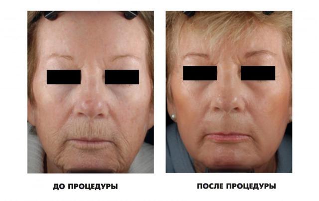 rf-лифтинг лица: что это такое, показания и противопоказания РФ для лица, сколько процедур и как часто нужно сделать