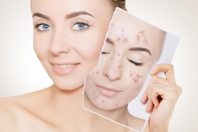 Масло чайного дерева для лица: применение, свойства для кожи, польза в косметологии