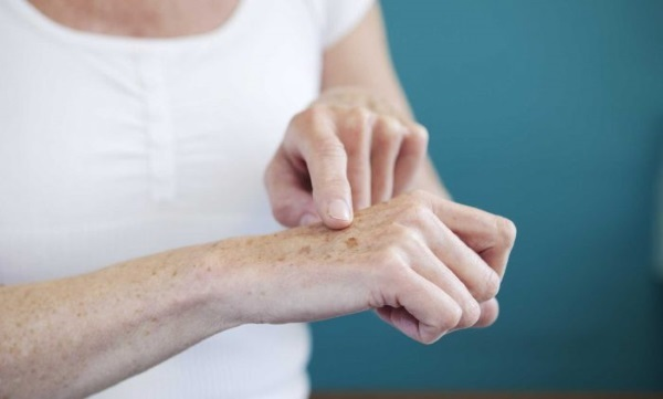 Как избавиться от пигментации на лице: убрать пигментные пятна на руках и теле, причины старческих, возрастных, удаление коричневых