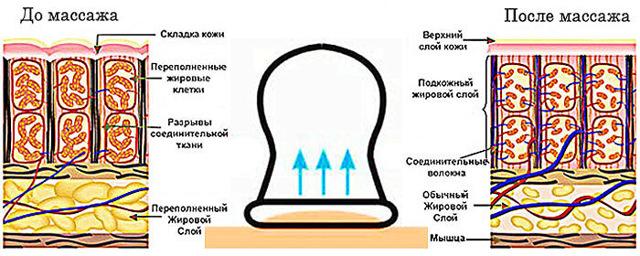 Антицеллюлитный массаж банками: как правильно делать вакуумными, как часто можно баночный дома