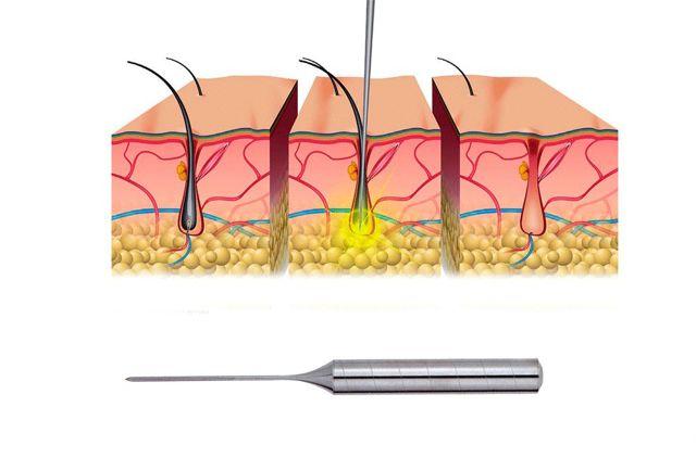 Электроэпиляция в зоне глубокого бикини - сколько стоит такая процедура, сколько сеансов и времени потребуется для полного удаления волос; может ли процедура удаления волос током спровоцировать появление фурункулов