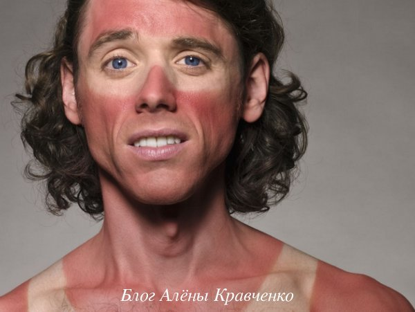 Что делать если сгорел на солнце: сильно обгорел и очень болит тело - чем намазать в домашних условиях, чем помазать кожу на пляже, сметана