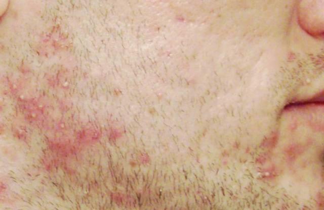 Средства после бритья - 17 способов избавиться от раздражения и покраснения: женские кремы и мази, подручные из аптеки, домашние методы