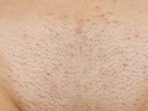 Раздражение в интимной зоне: как избавиться после бритья, как убрать сильное дома, как быстро снять кремом, что делать, лечение