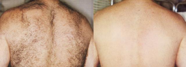 Александритовый лазер - технические характеристики, принцип действия и виды: candela gentlelase pro, new soprano, light sheer; какой лучше: диодный, элос-эпиляция или александритовый; противопоказания к применению аппарата для удаления волос