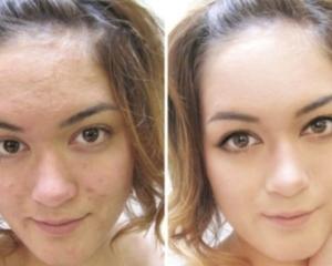 Бодяга для лица: отзывы о геле, свойства маски из бадяги, порошок с перекисью водорода, из чего делают крем в косметологии для кожи, мазь