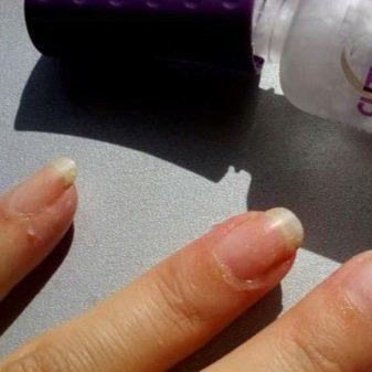 Гель для удаления кутикулы: что это такое, как пользоваться средством для размягчения, как использовать лак-удалитель, какая лучше жидкость