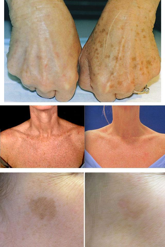 Удаление пигментных пятен лазером: отзывы лазерной шлифовки на лице, можно ли удалить пигментацию летом, сколько стоит отбеливание кожи